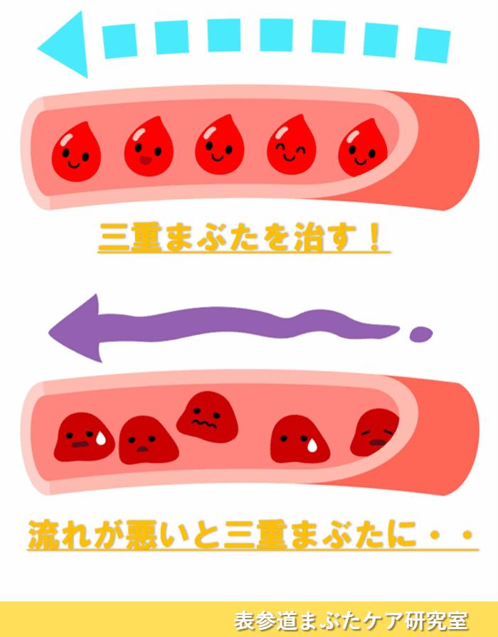 三重まぶた 血行 リンパ