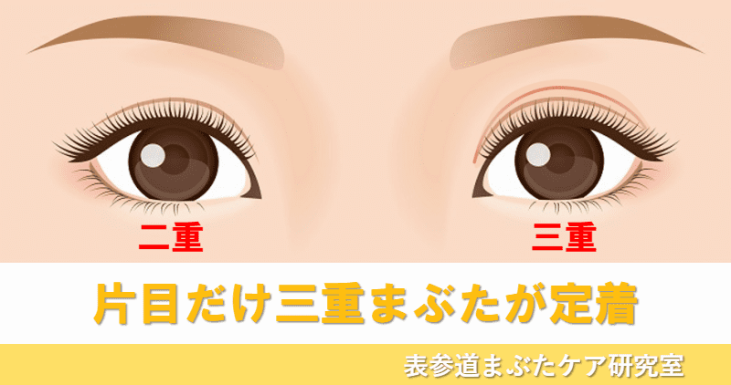 三重まぶた 片目