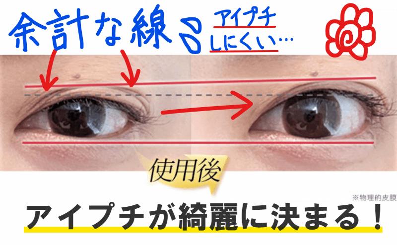 アイプチ 伸びた瞼