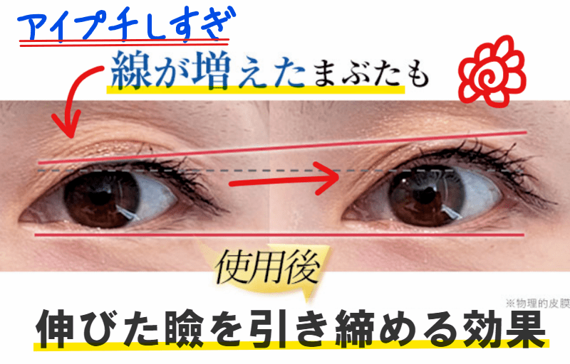 伸びた瞼 線