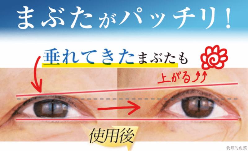 眼瞼下垂 アイクリーム 効果