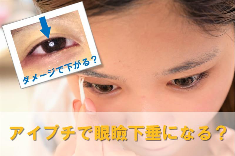 アイプチ 眼瞼下垂