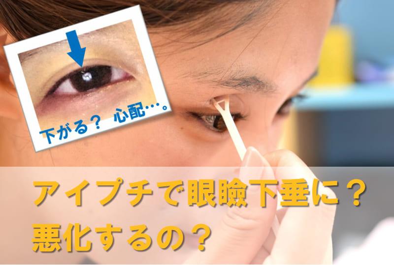 眼瞼下垂 アイプチ