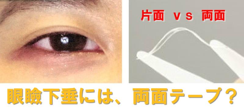 眼瞼下垂 アイテープ 両面