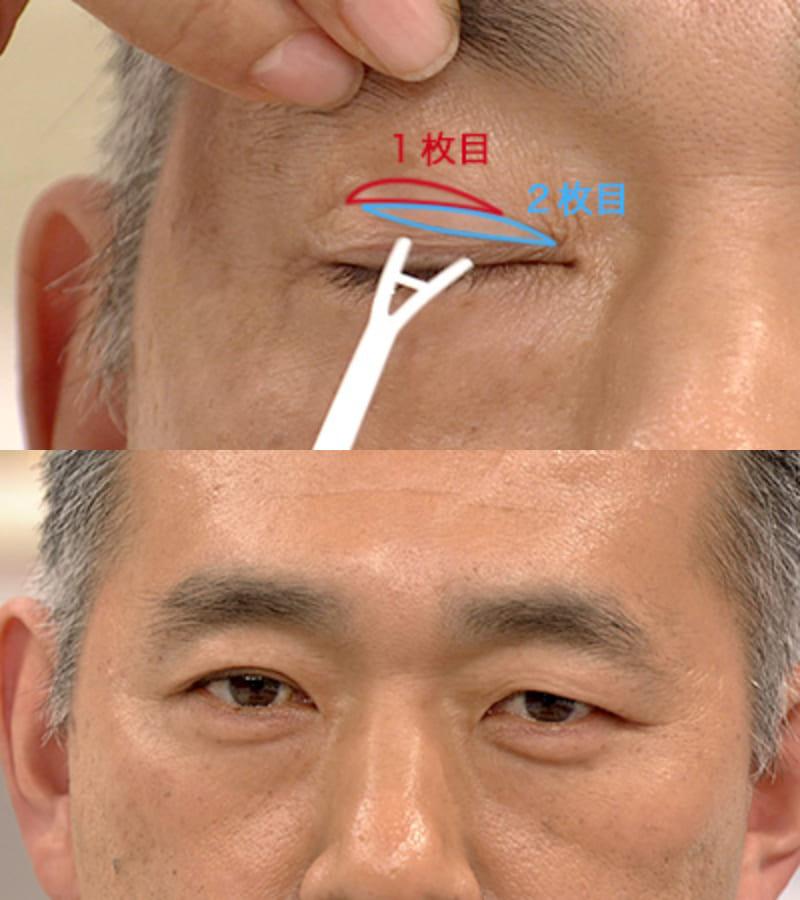 眼瞼下垂 テープ 貼り方
