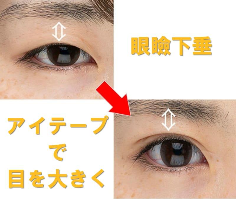 眼瞼下垂 アイテープ