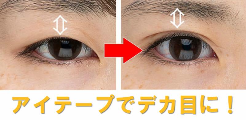 眼瞼下垂 アイテープ 目大きく