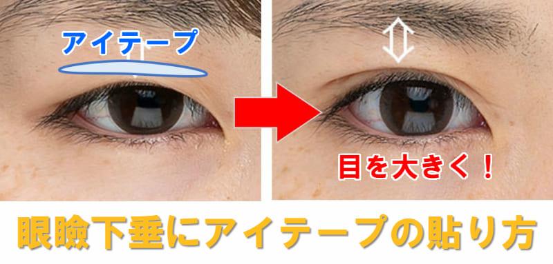 眼瞼下垂 アイテープ 貼り方