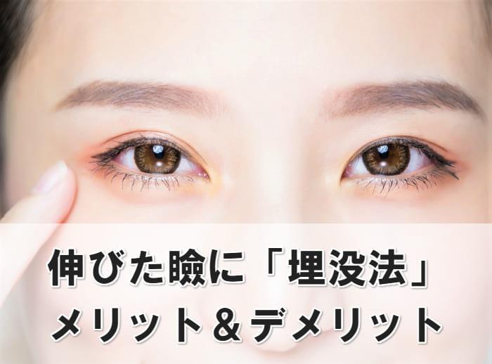伸びた瞼 埋没法