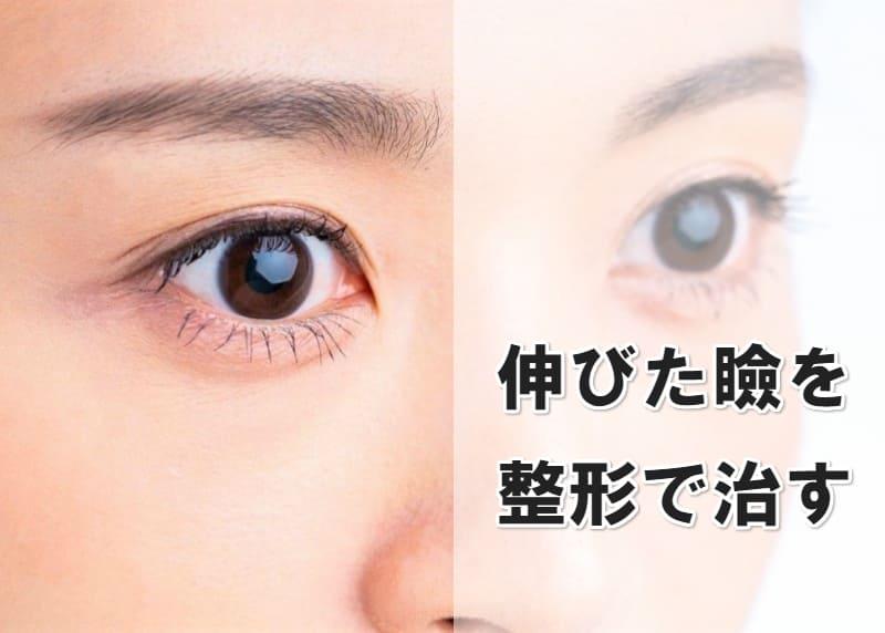 伸びた瞼 整形