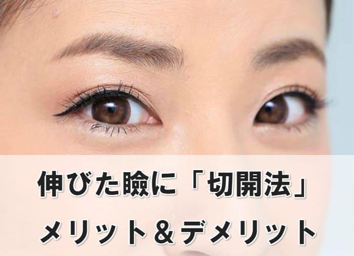 伸びた瞼 切開法