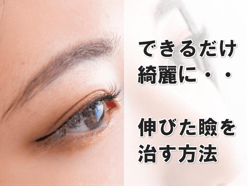 伸びた瞼 治す