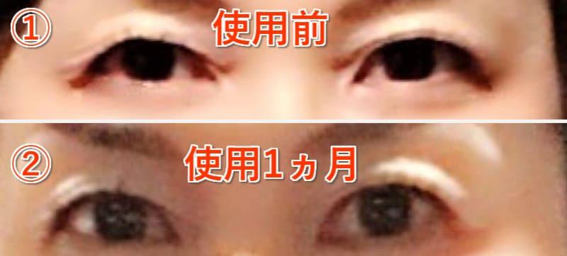 眼瞼下垂 ビフォーアフター