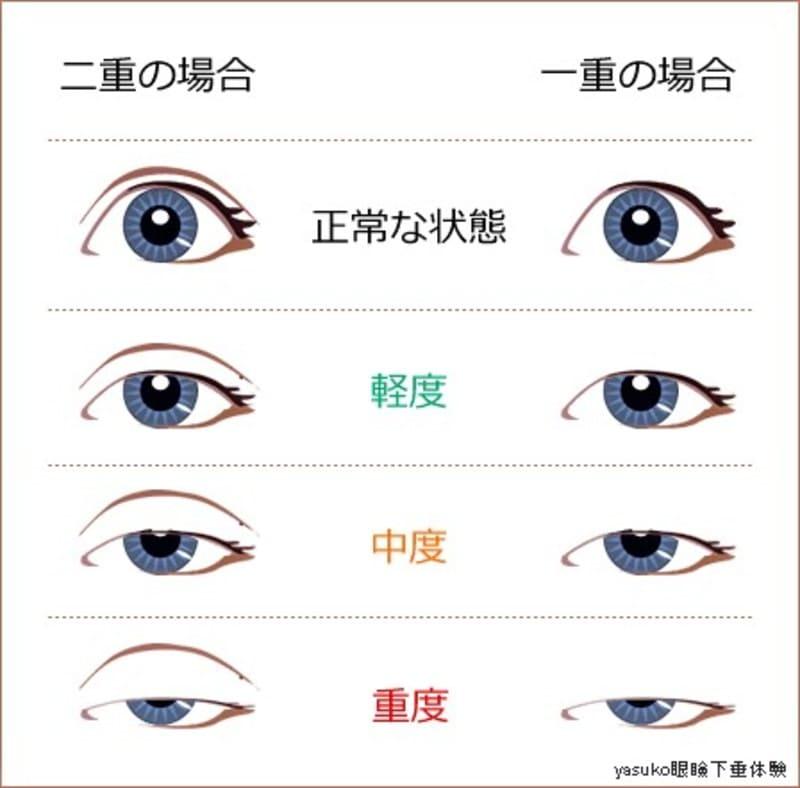 眼瞼下垂 セルフチェック
