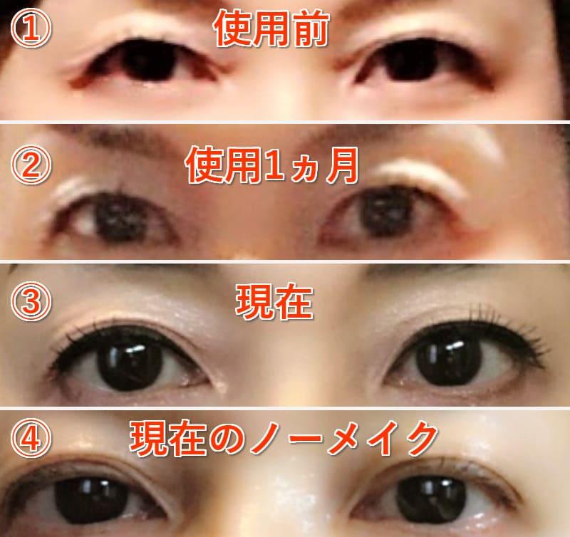 眼瞼下垂 クリーム