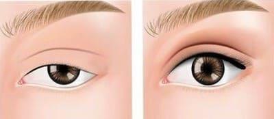 眼瞼下垂 自力で治す