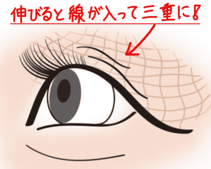伸びた 三重瞼