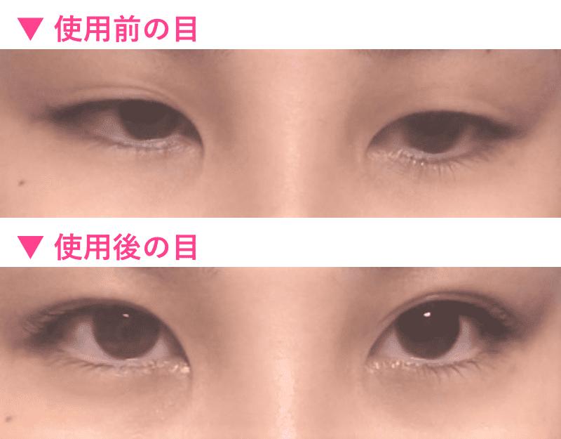 伸びた瞼 二重