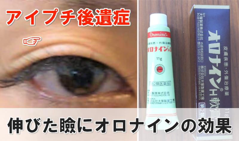 伸びた瞼 オロナイン