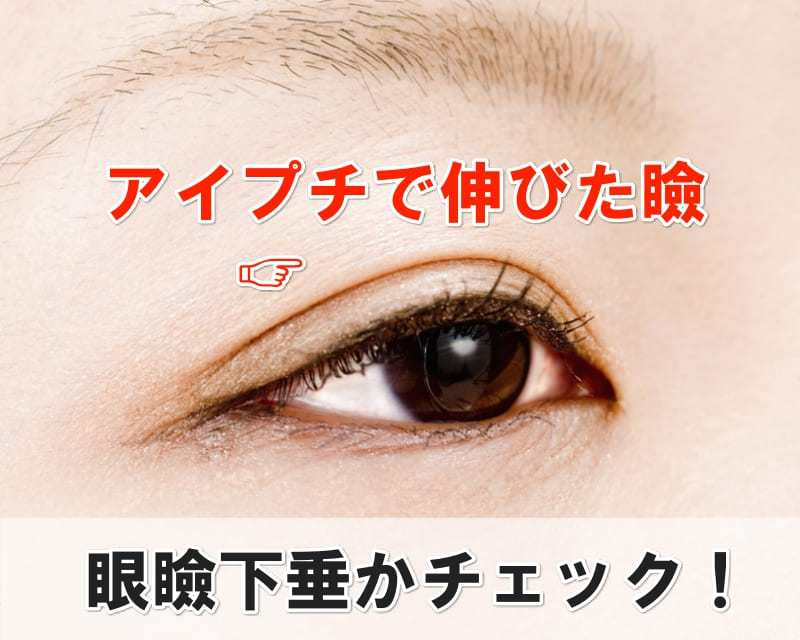 伸びた瞼 眼瞼下垂