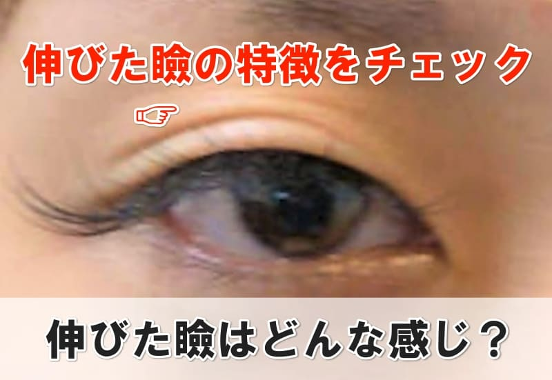 伸びた瞼 特徴