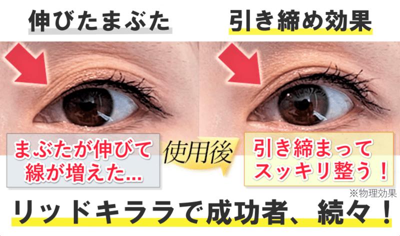 伸びた瞼 引き締め