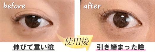 伸びた瞼 アイクリーム 引き締め